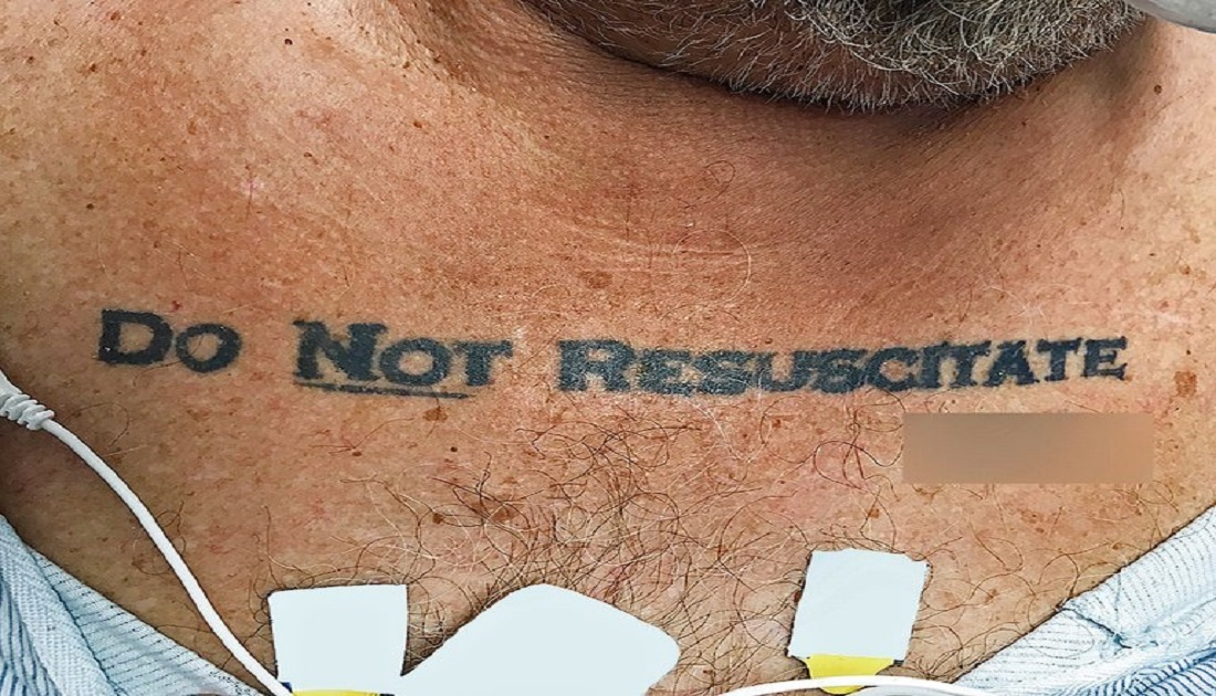 A Man Collapsed With 'Do Not Resuscitate' Tattooed On His